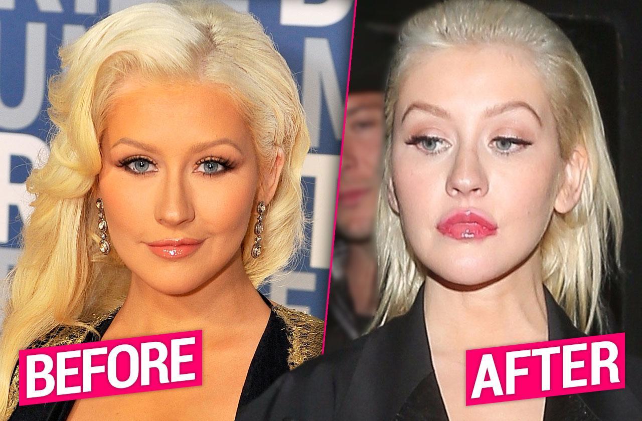 //Christina Aguilera Lips Plastic Surgery pp