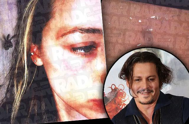 Amber Heard Johnny Depp Abuse Claims Photo Damage