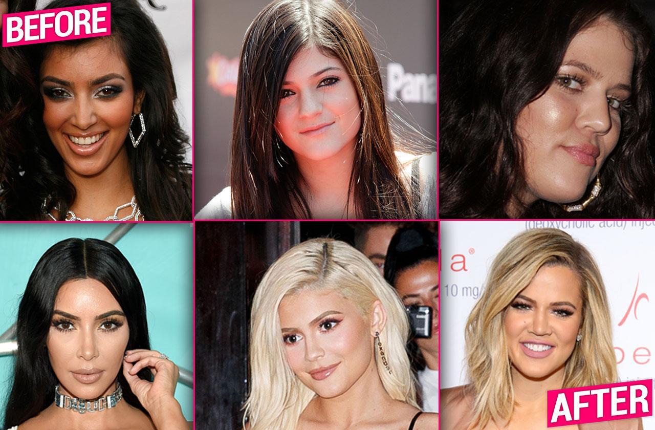 Kardashian Jenner Plastic Surgery