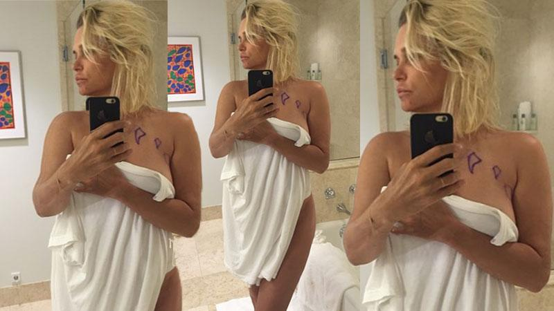 Yolanda Foster Posts Near-Naked Selfie To Show Breast Implant Rupture