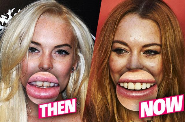 //lindsay lohan teeth rotted bad pp