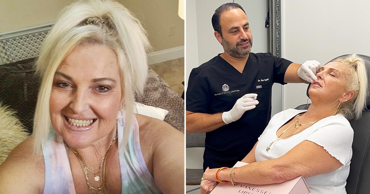 day fiance angela deem lip fillers and botox injections fight husband michael ilesanmi tlc r