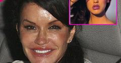 //janice dickinson plastic surgery