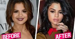 //Selena Gomez Lip Injections Plastic Surgery