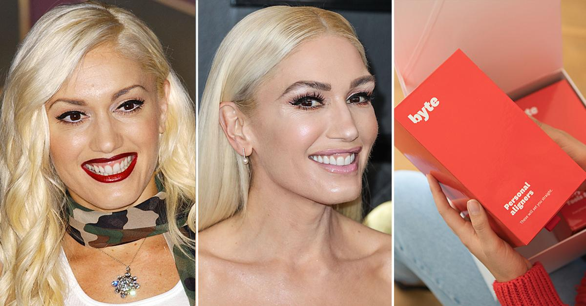 byte smile celeb teeth improve trend shop
