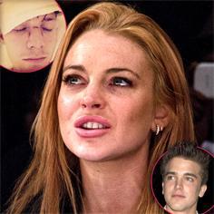 //lindsay lohan barron hilton plastic surgery fix face sq