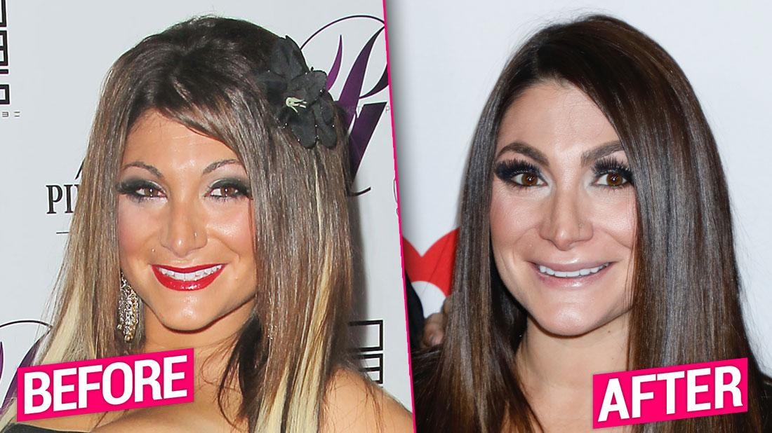 Jersey Shore' Cast's Shocking Plastic Surgery Transformations Revealed