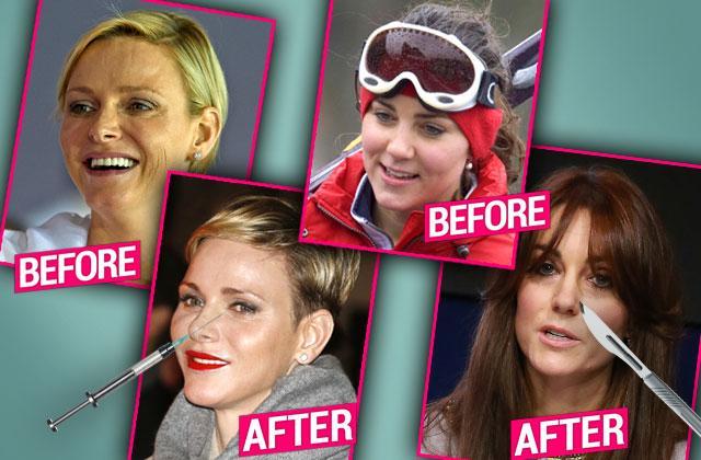 royal plastic surgery secrets