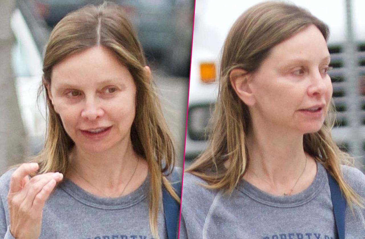 //calista flockhart plastic surgery before after pp
