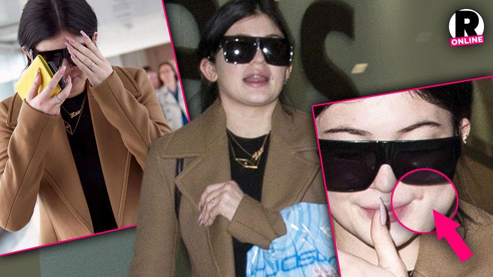 Kylie Jenner Pimple