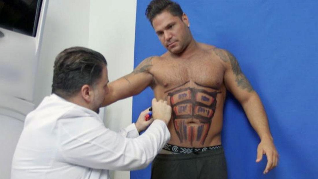 'Jersey Shore' Star Ronnie Ortiz Magro Gets Lipo For 6-Pack Abs