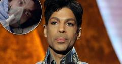 Prince Dead Autopsy Experts Show