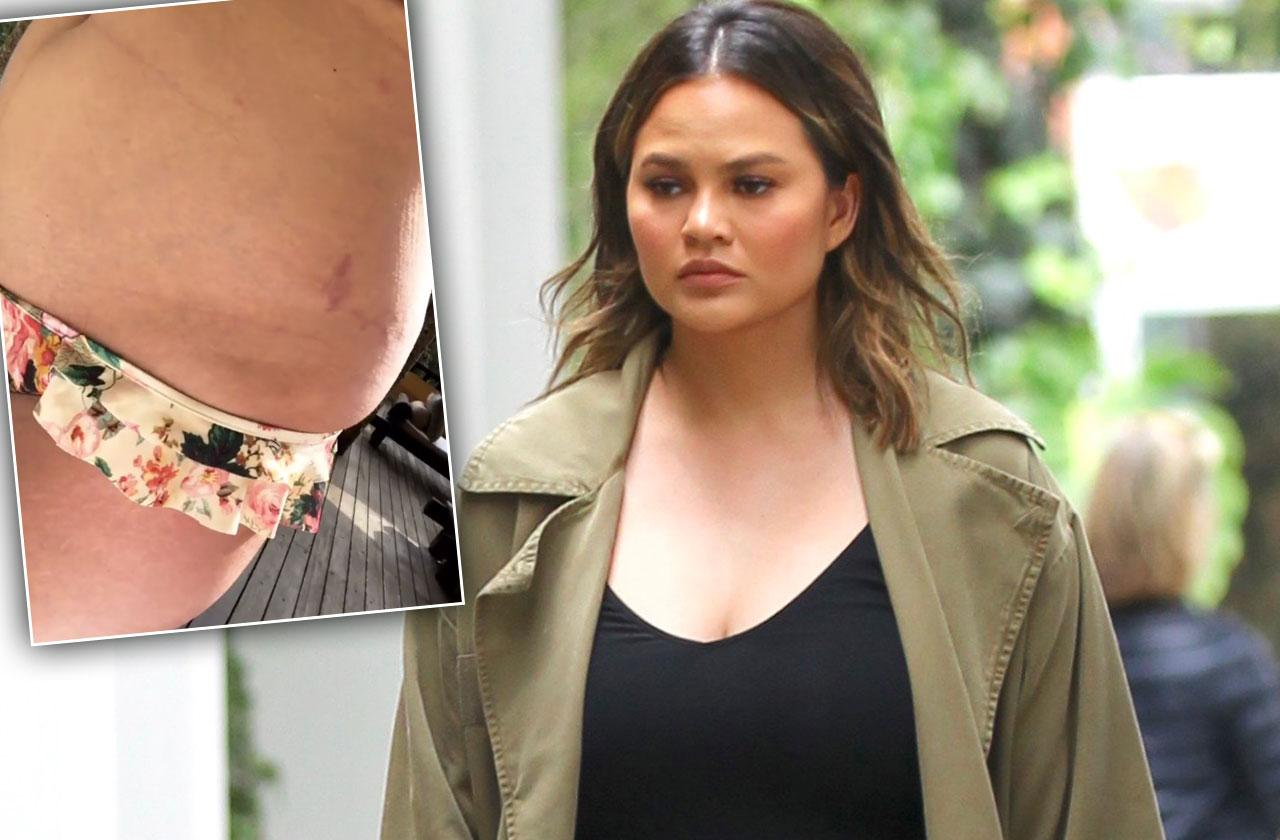 Chrissy Teigen Mom Bod Stretch Marks