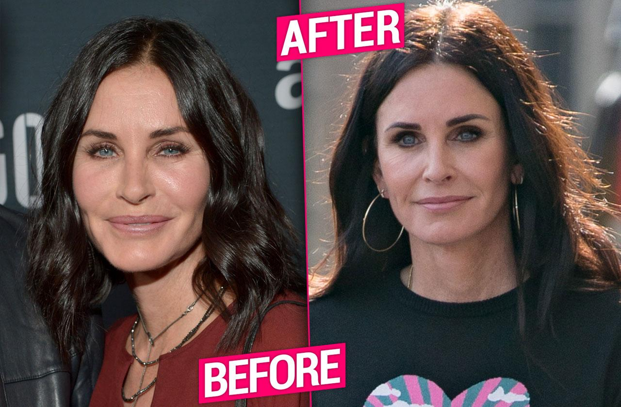 Courteney Cox Facial Fillers Removed