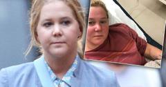 //Amy Schumer Hospitalized Kidney Infection pp