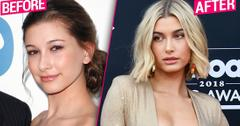 'Nose, Lips, Brows, Fillers' & More! Hailey Baldwin's Plastic Face Dissected By Top Docs