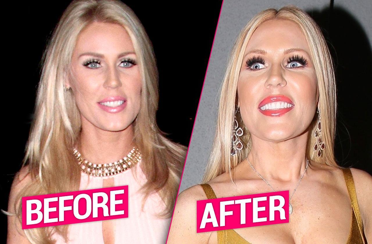 //Gretchen Rossi Plastic Surgery pp