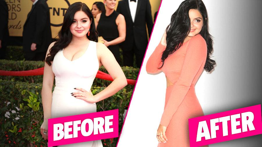 //ariel winter breast reduction surgery pp