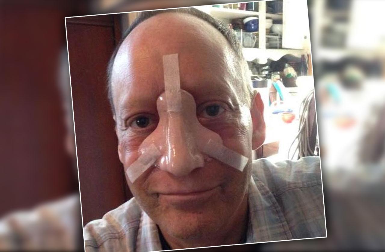 Steve Bean Levy Dead Nose Cancer Battle