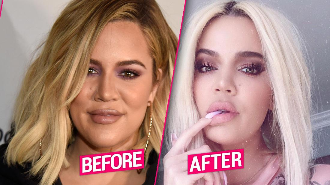 Khloe Kardashian Before After Tristan Thompson Plastic Surgery Face Photos