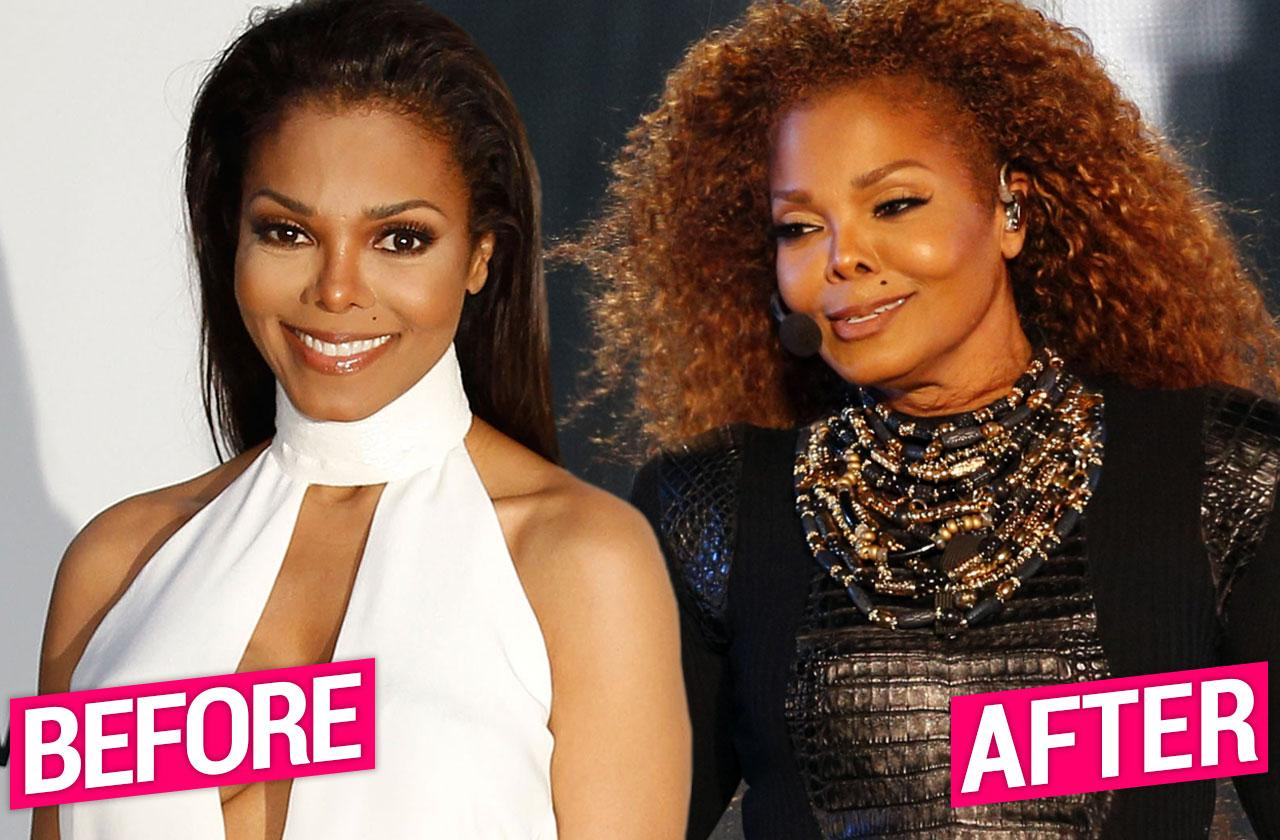 Janet Jackson Before After Plastic Surgery