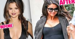 //selena gomez gomez before after  pp