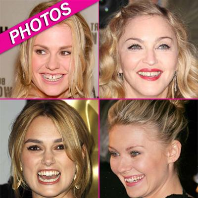 //celebs bad teeth wenngetty post