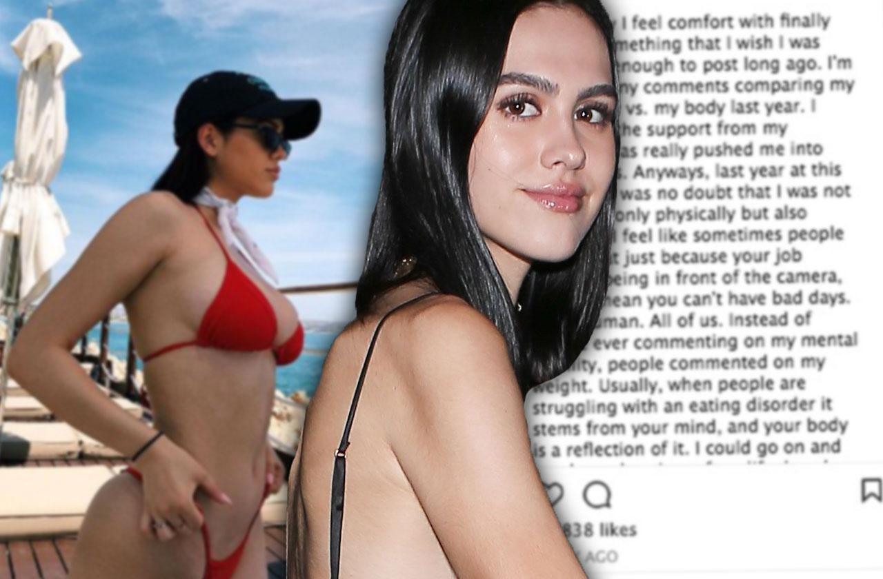 //amelia gray hamlin lisa rinna model daughter anorexia pp