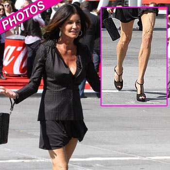 //janice dickinson legs wrinkly pcn