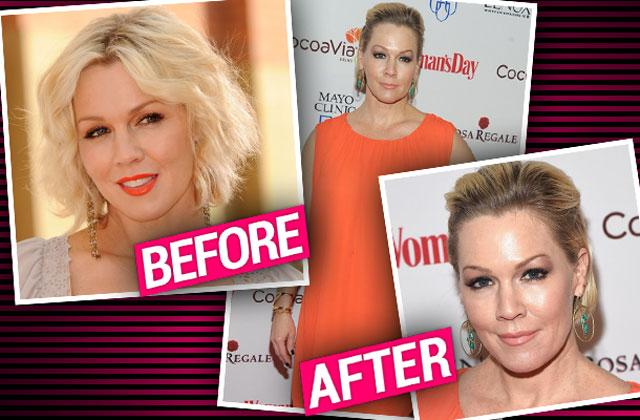 //jennie garth plastic surgery botox red carpet pp