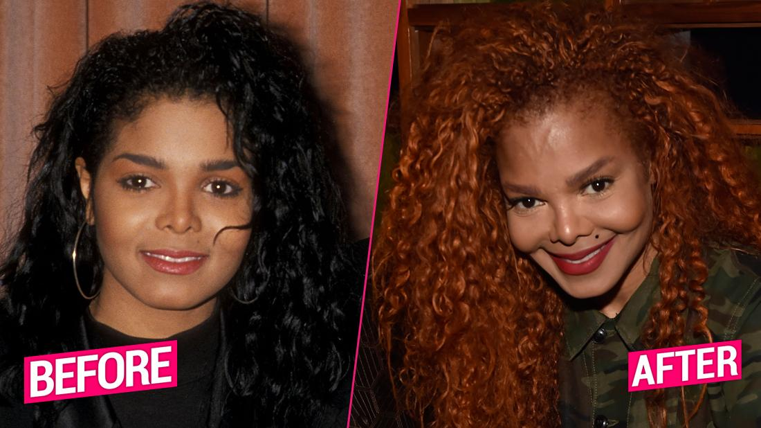 Janet Jackson before and after plastic surgery photos
