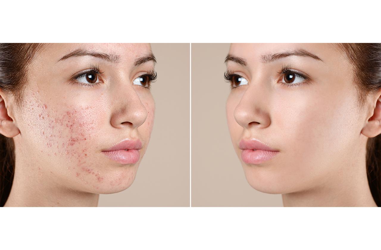 skin-pimples-pic