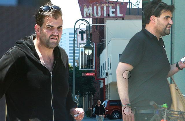 //jason gummi bear davis track marks sores motel shocking photos pp