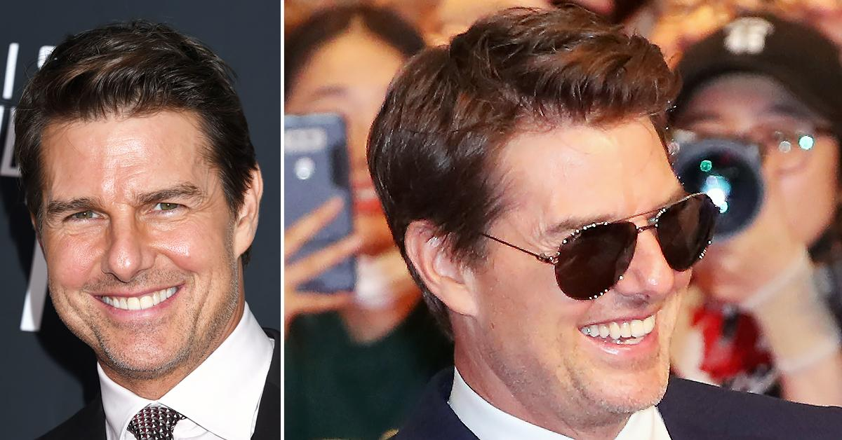 tom cruise front teeth knocked out by his kid wears dentures gossip cindy adams r