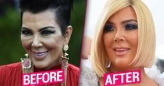 Kris Jenner's Plastic Surgery Makeover Exposed By Top Docs