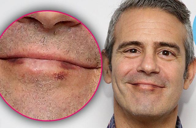 Andy Cohen Cancer Diagnosis Skin Lip Mark Pics