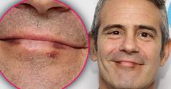 Andy Cohen Cancer Diagnosis Skin Lip Mark Pics