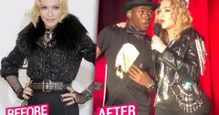 Madonna Butt Injections New Year's Eve Concert