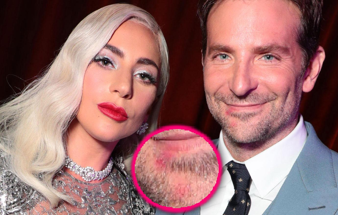 Lady Gaga's Lipstick Seen On Bradley Cooper's Mouth