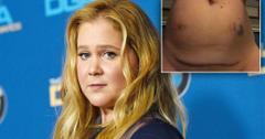Amy Schumer Says She's Run Down Amid IVF Treatment