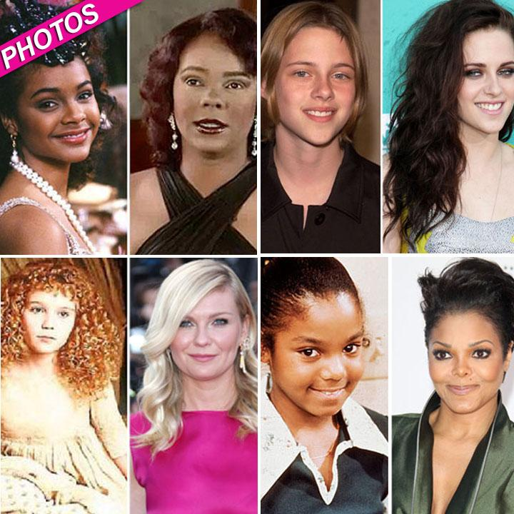 //celebrity plastic surgery post
