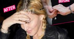 Madonna Plastic Surgery Hands Wrinkly