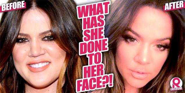 //khloe kardashian face transformation  wide