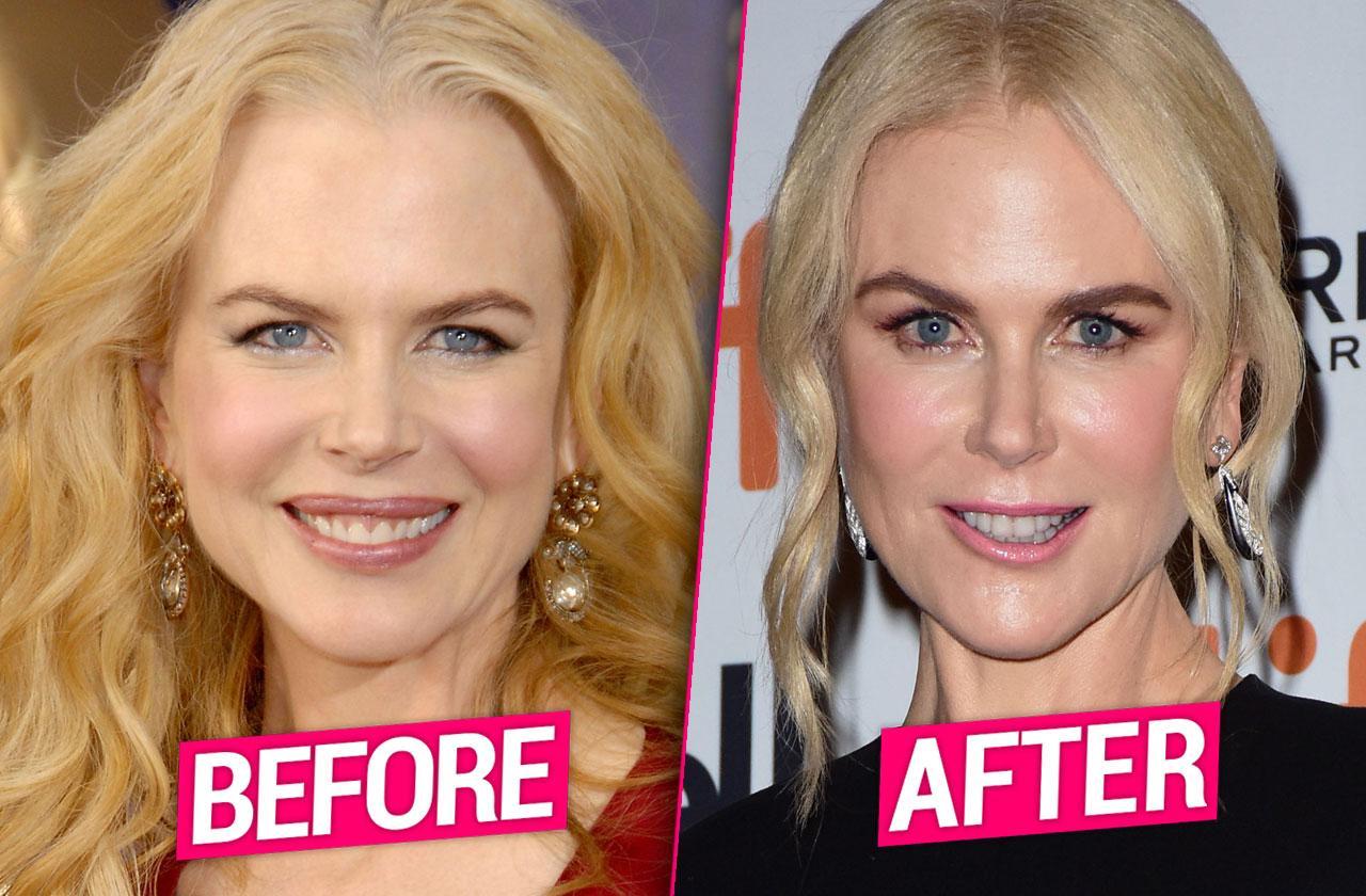 Nicole Kidman Plastic Surgery Facelift Fillers Botox