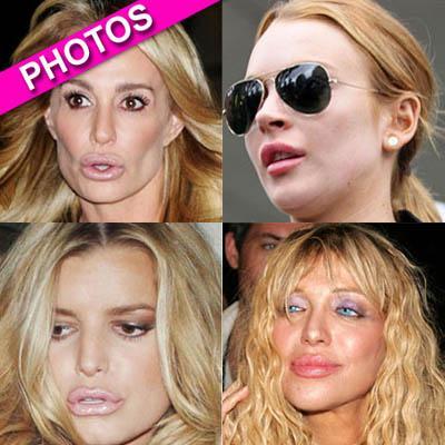 //plastic surgery lipsbfd