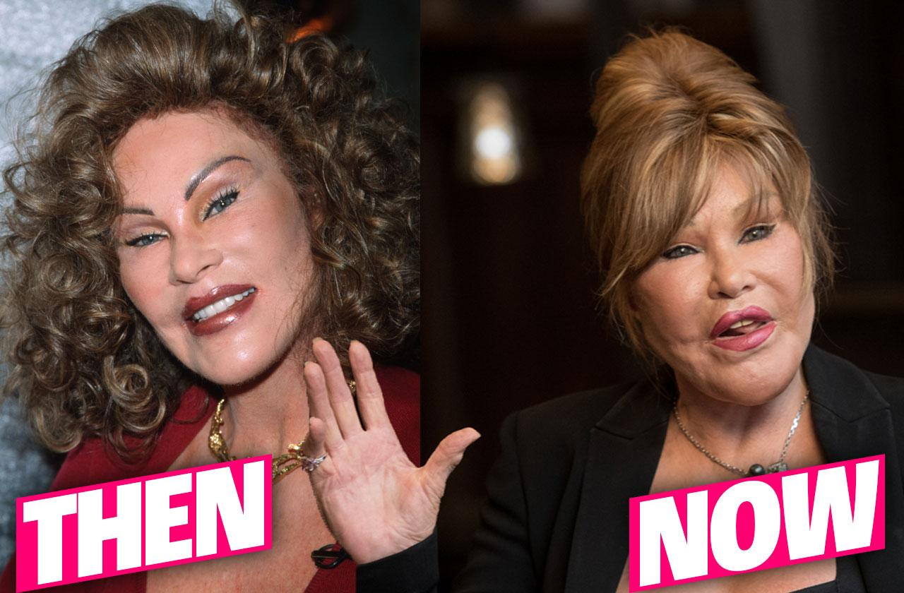 //catwoman jocelyn wildenstein never plastic surgery pp