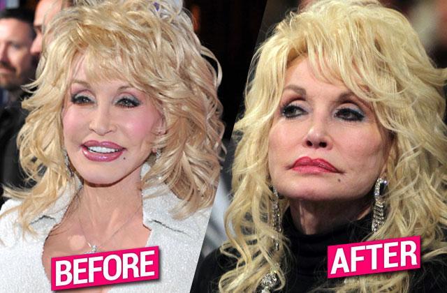 Dolly Parton Poisoned Botox
