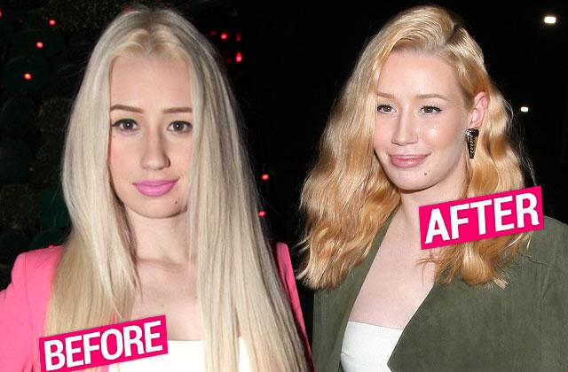ggy Azalea Plastic Surgery Face Before After Photos