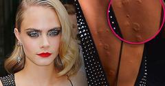 cara delevingne welts bumps rash back suicide square premiere
