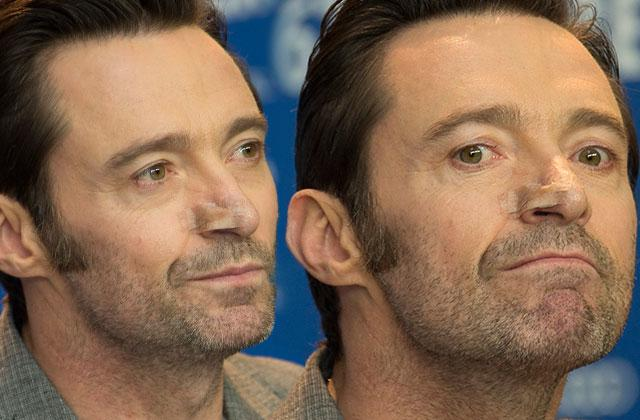 Hugh Jackman Cancer Skin Surgery Spotted Healthy